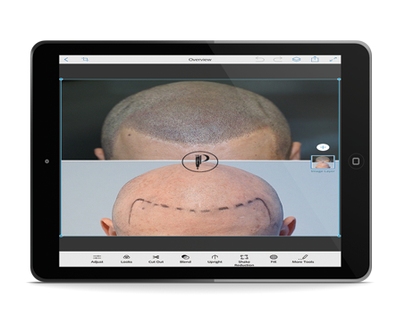 Scalp Micropigmentation Photo Mockup Traning 1