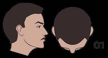 scalp micropigmentation austin Norwood scale 1