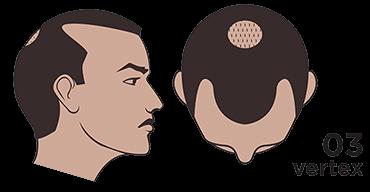 scalp micropigmentation austin Norwood scale 3 vertex