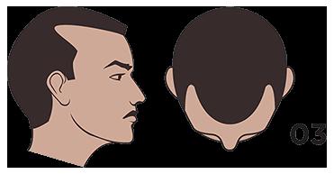 scalp micropigmentation austin Norwood scale 3