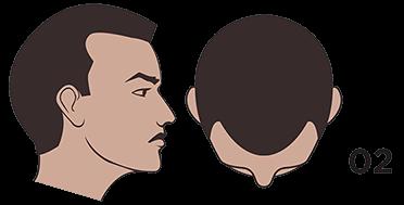 scalp micropigmentation austin Norwood scale 2