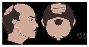 scalp micropigmentation austin Norwood scale 5