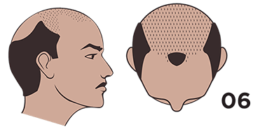 scalp micropigmentation austin Norwood scale 6