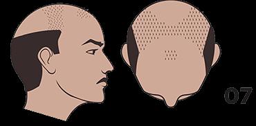 scalp micropigmentation austin Norwood scale 7